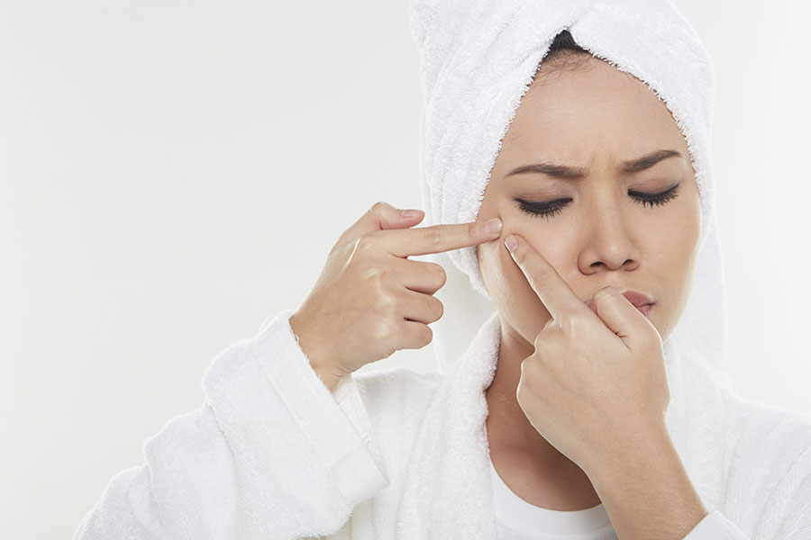 Getting Rid of Acne the Cheap Way