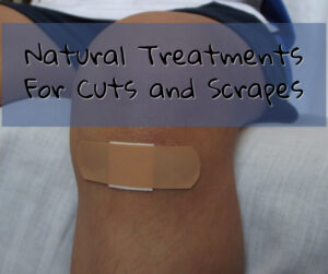 Natural Remedies For Cuts and Scrapes